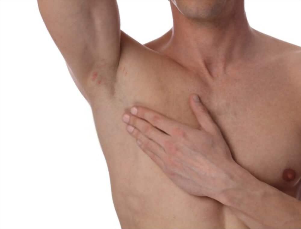 man armpit with irritation