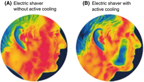 Effect of cooling technology on reducing irritation and itching